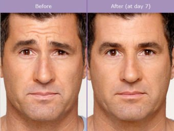 Botox before and after - man, forehead wrinkles