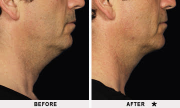 Kybella double chin treatment before and after treatment on a man