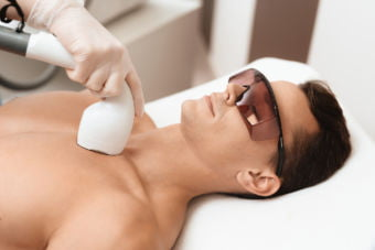 Man with protective eyewear getting laser hair reduction treatment.