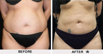 PowerLipo before and after results - Torso