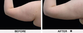 PowerLipo before and after results - upper arm