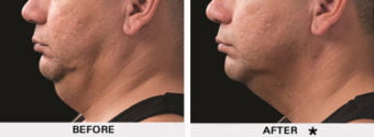Coolsculpting For Men before and after - neck and chin
