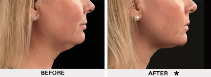 Coolsculpting before and after - neck