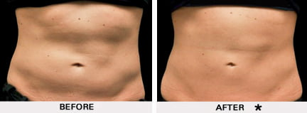 Coolsculpting before and after - abdomen