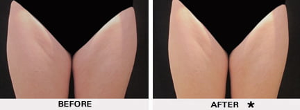 Coolsculpting before and after - thighs