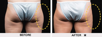 Coolsculpting before and after - buttocks and thighs
