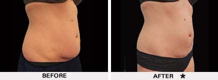 Coolsculpting before and after - torso