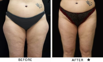 PowerLipo before and after results - thigh